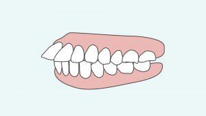 出っ歯を横から見た図