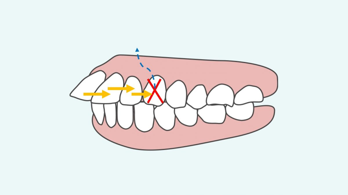 歯を抜いて前歯を後ろに移動